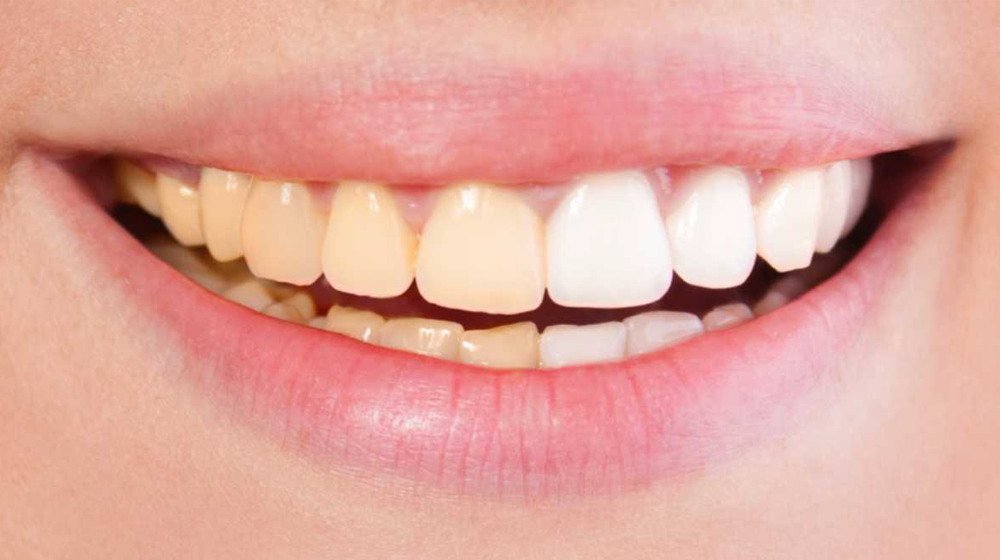 Whitening of teeth